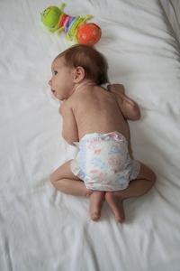 Разные складки на ногах у детей 3
